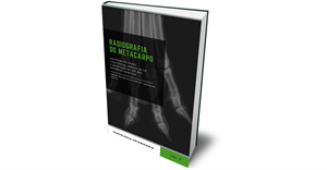 Novo eBook: radiografia do carpo e metacarpo